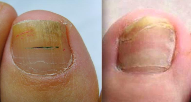 Fungo di unghie su mani a crema di bambini